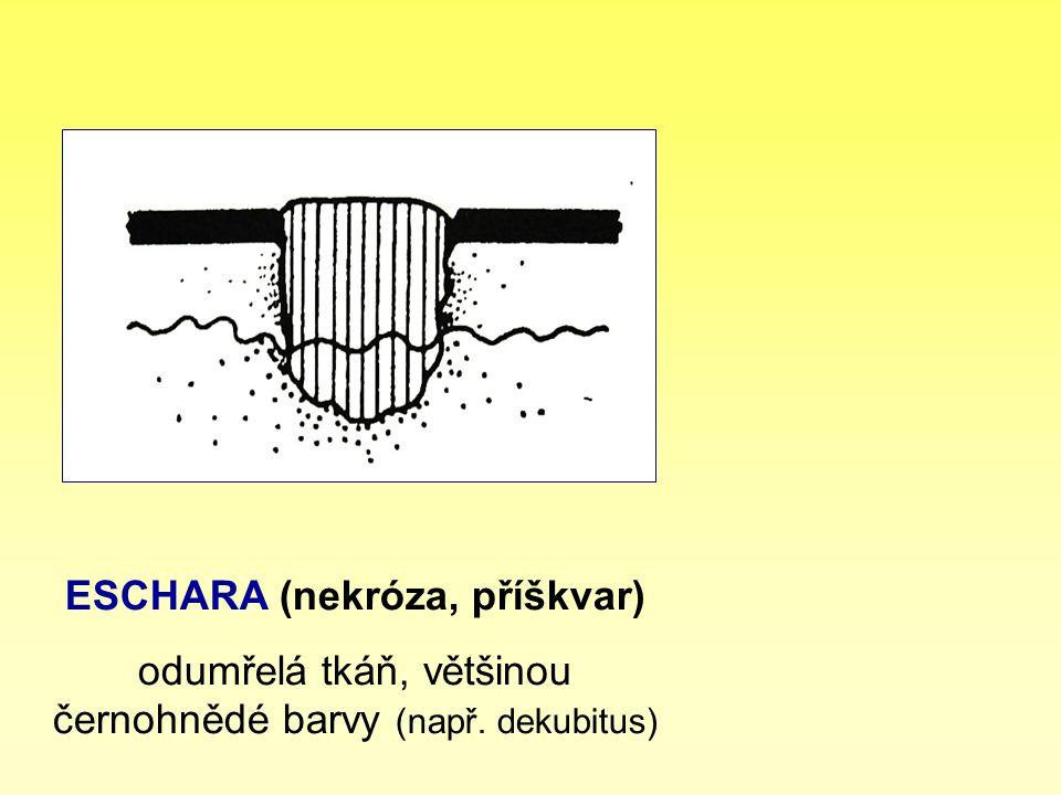 ESCHARA (nekróza, příškvar) odumřelá tkáň, většinou černohnědé barvy (např. dekubitus)