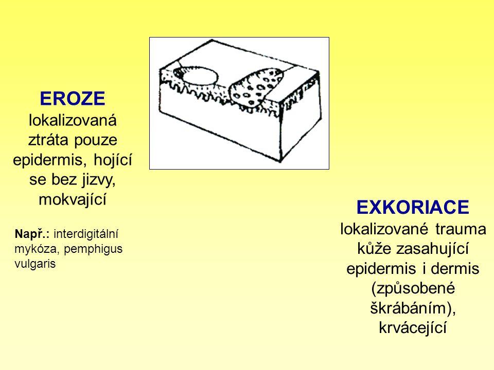 EROZE lokalizovaná ztráta pouze epidermis, hojící se bez jizvy, mokvající EXKORIACE lokalizované trauma kůže zasahující epidermis i dermis (způsobené
