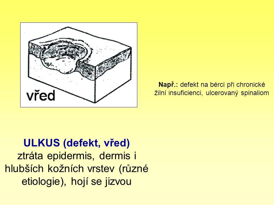 ULKUS (defekt, vřed) ztráta epidermis, dermis i hlubších kožních vrstev (různé etiologie), hojí se jizvou Např.: defekt na bérci při chronické žilní i