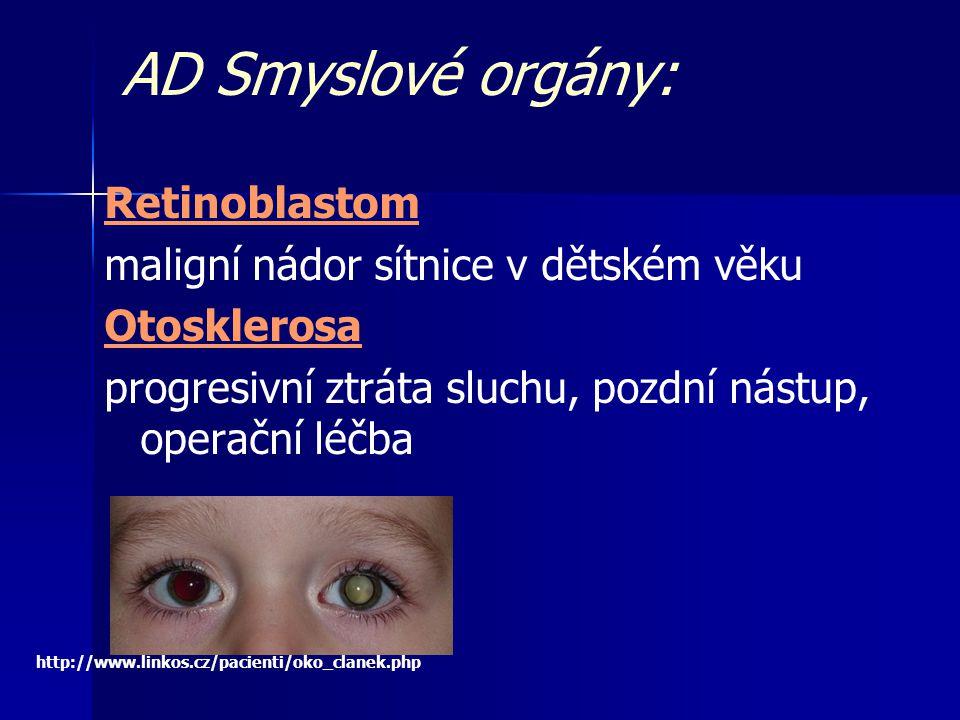 AD Smyslové orgány: Retinoblastom maligní nádor sítnice v dětském věku Otosklerosa progresivní ztráta sluchu, pozdní nástup, operační léčba http://www