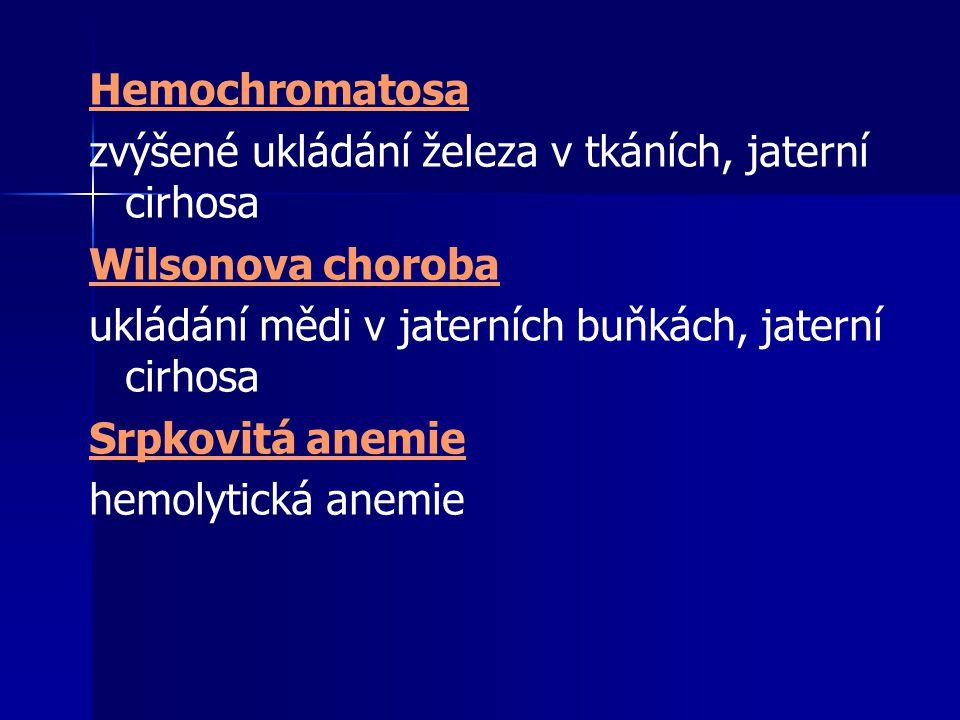 Hemochromatosa zvýšené ukládání železa v tkáních, jaterní cirhosa Wilsonova choroba ukládání mědi v jaterních buňkách, jaterní cirhosa Srpkovitá anemi