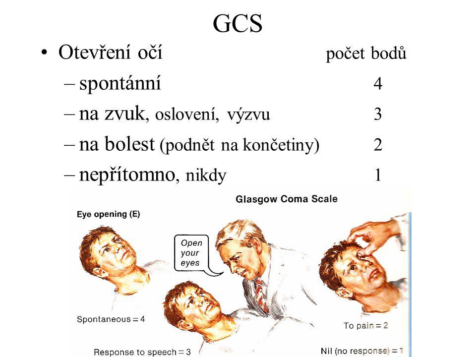 GCS Otevření očí počet bodů –spontánní 4 –na zvuk, oslovení, výzvu3 –na bolest (podnět na končetiny) 2 –nepřítomno, nikdy1