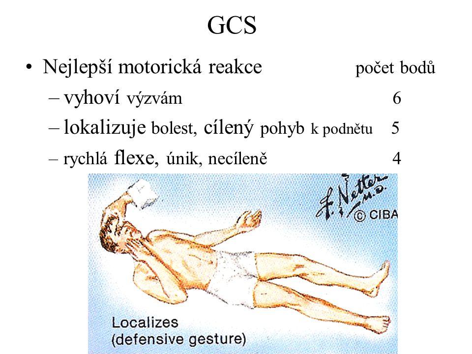 GCS Nejlepší motorická reakce počet bodů –vyhoví výzvám 6 –lokalizuje bolest, cílený pohyb k podnětu 5 –rychlá flexe, únik, necíleně 4