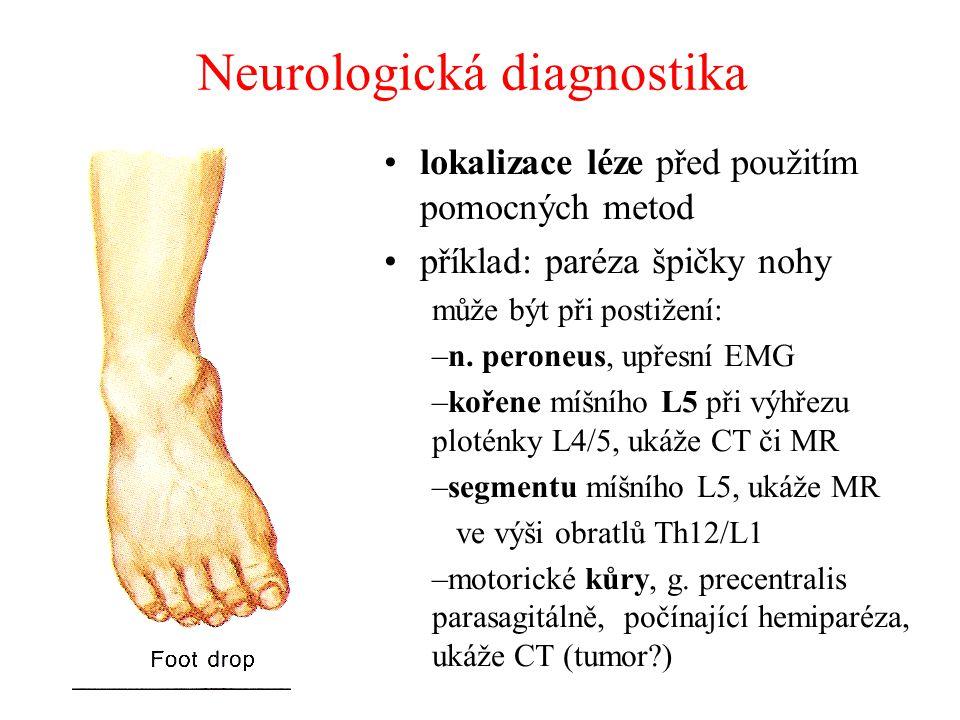 Neurologická diagnostika lokalizace léze před použitím pomocných metod příklad: paréza špičky nohy může být při postižení: –n. peroneus, upřesní EMG –