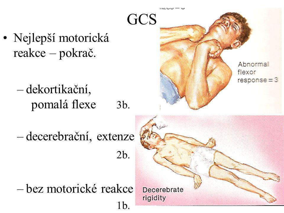 GCS Nejlepší motorická reakce – pokrač. –dekortikační, pomalá flexe 3b. –decerebrační, extenze 2b. –bez motorické reakce 1b.