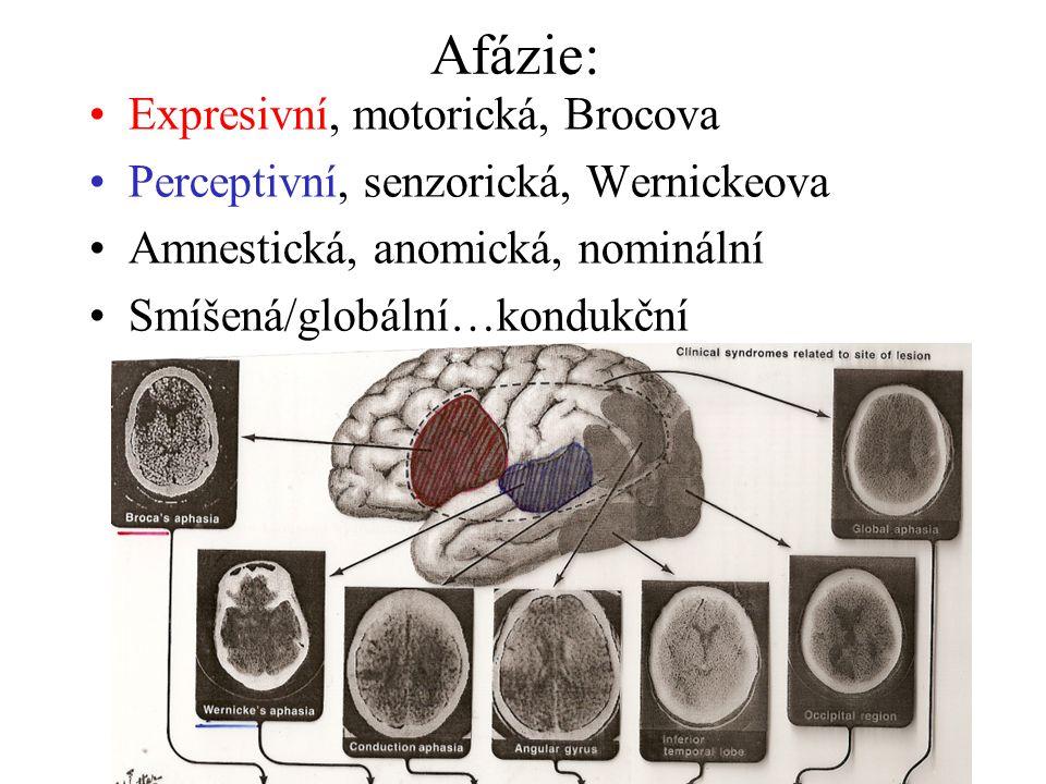 Afázie: Expresivní, motorická, Brocova Perceptivní, senzorická, Wernickeova Amnestická, anomická, nominální Smíšená/globální…kondukční