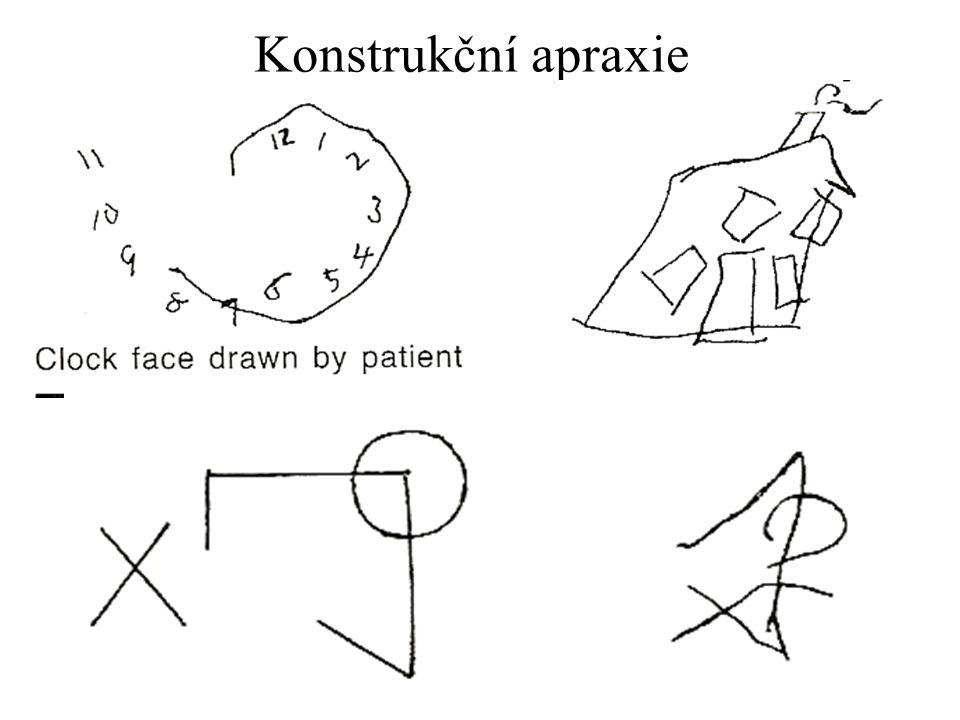 Konstrukční apraxie