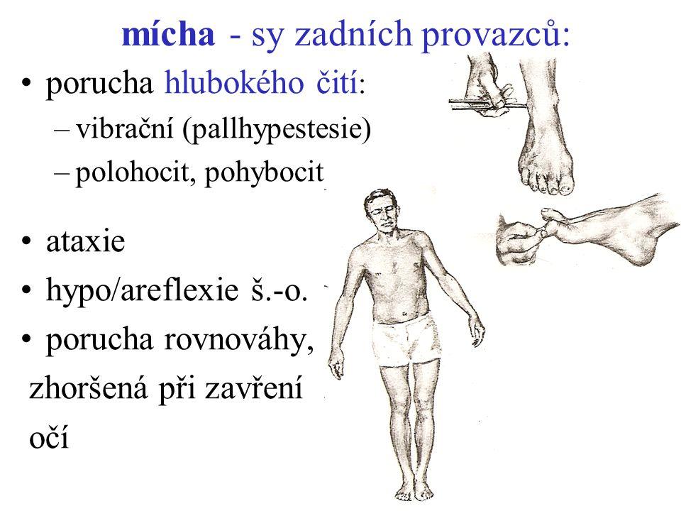 mícha - sy zadních provazců: porucha hlubokého čití : –vibrační (pallhypestesie) –polohocit, pohybocit ataxie hypo/areflexie š.-o. porucha rovnováhy,