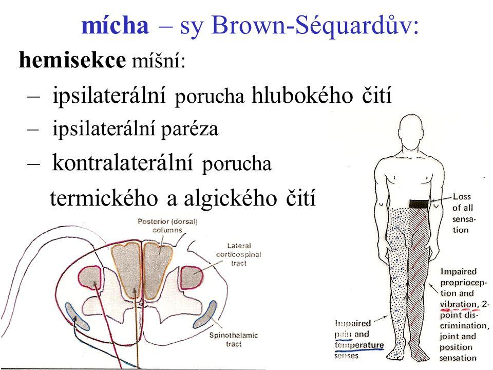 mícha – sy Brown-Séquardův: hemisekce míšní: –ipsilaterální porucha hlubokého čití –ipsilaterální paréza –kontralaterální porucha termického a algické