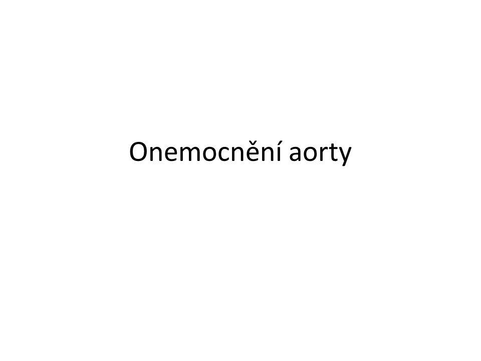 Aneurysma hrudní aorty Indikace k operaci - asymptomatický pacient nad 55mm (29mm/m 2 ) - Marfan, těhotenství, plánovaná operace aortální chlopně (25mm/m 2 ) - pseudoaneurysma (iatrogenní, traumatické)