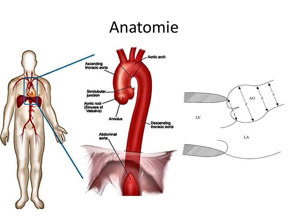Aneurysma břišní (abdominální) aorty (AAA) Prevalence 3% v populaci nad 50 let Nejčastější v subrenální oblasti Ateroskleróza jako hlavní rizikový faktor 14.nejčastější příčin úmrtí v USA Mortalita na rupturu AAA je 40-70% AAA = dilatace břišní aorty nad 3 cm