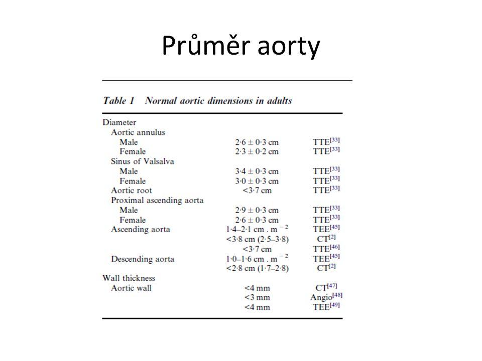 Aneurysma abdominální aorty