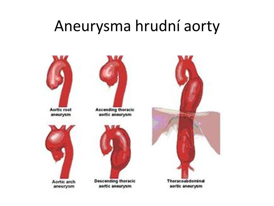 Klinická symptomatologie - asymptomatický náhodný nález - bolest na hrudi - známky útlaku okolních struktur (HDŽ, trachea, nervus reccurens) - symptomy z aortální insuficience - ruptura, disekce