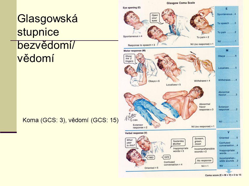 7 Glasgowská stupnice bezvědomí/ vědomí Koma (GCS: 3), vědomí (GCS: 15)