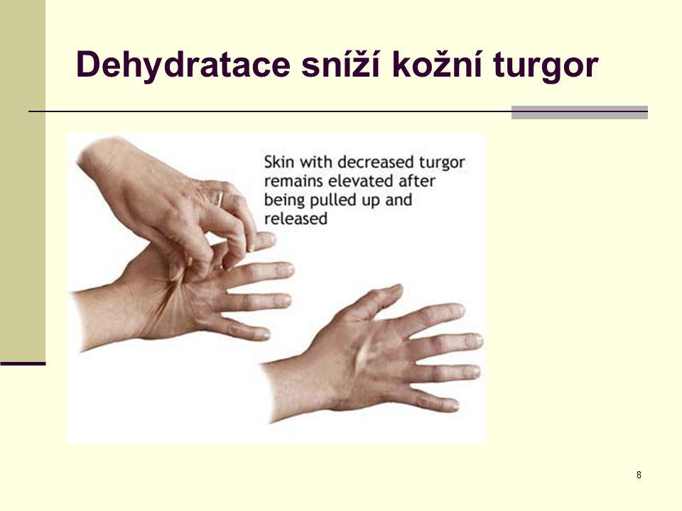 8 Dehydratace sníží kožní turgor