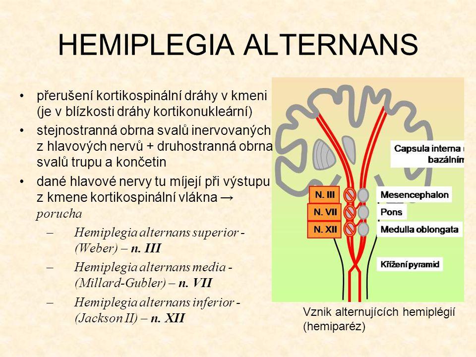HEMIPLEGIA ALTERNANS přerušení kortikospinální dráhy v kmeni (je v blízkosti dráhy kortikonukleární) stejnostranná obrna svalů inervovaných z hlavovýc