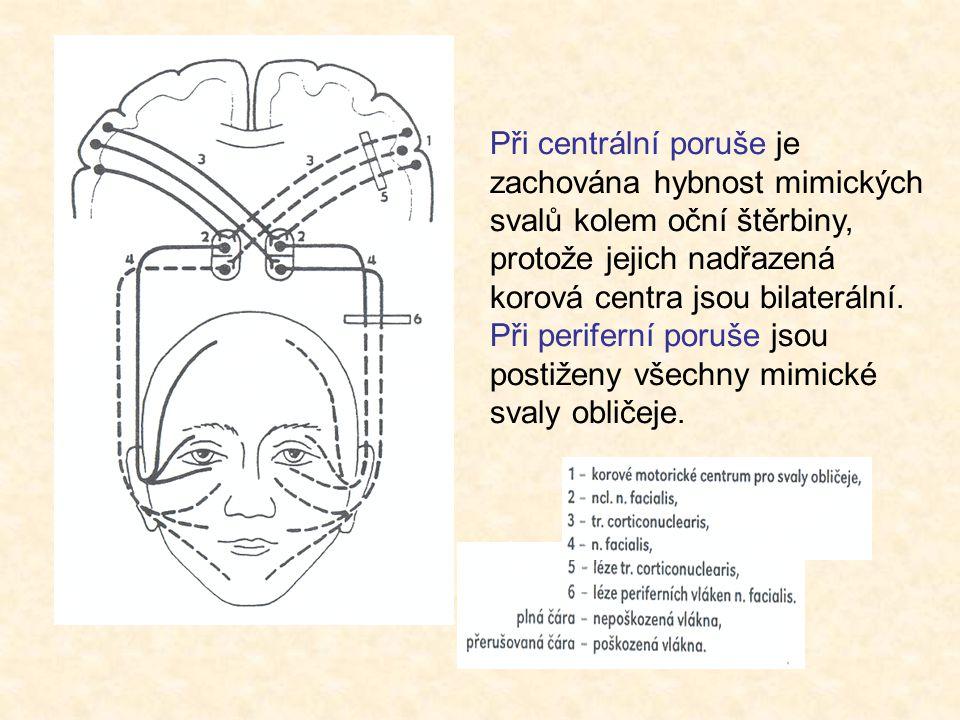 Při centrální poruše je zachována hybnost mimických svalů kolem oční štěrbiny, protože jejich nadřazená korová centra jsou bilaterální. Při periferní