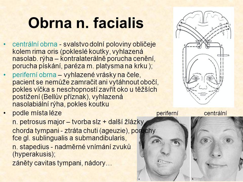 Obrna n. facialis centrální obrna - svalstvo dolní poloviny obličeje kolem rima oris (pokleslé koutky, vyhlazená nasolab. rýha – kontralaterálně poruc