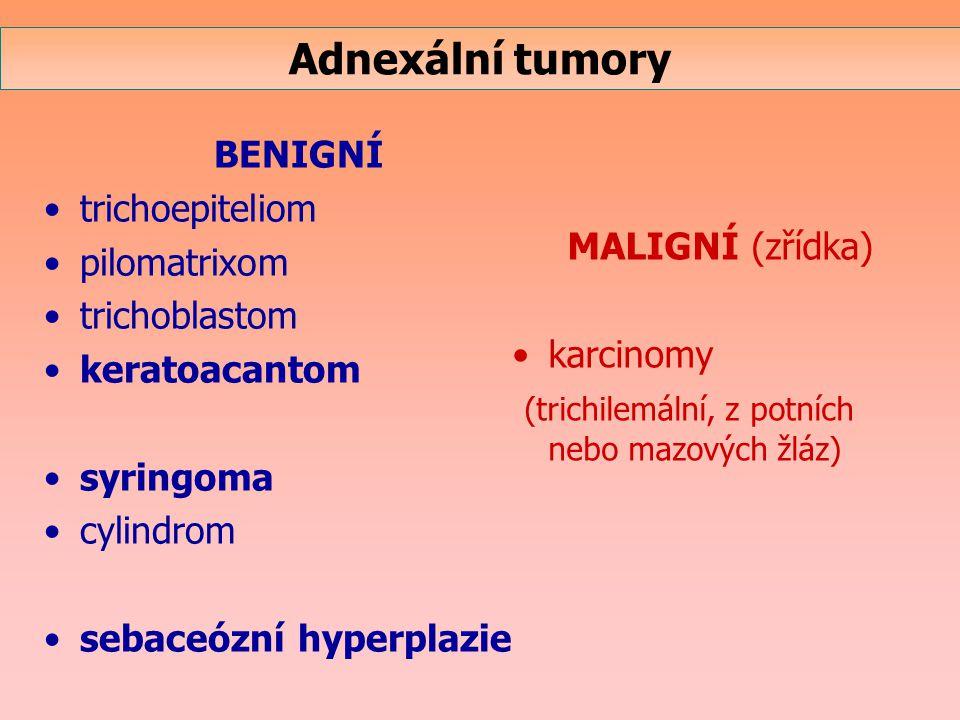BENIGNÍ trichoepiteliom pilomatrixom trichoblastom keratoacantom syringoma cylindrom sebaceózní hyperplazie MALIGNÍ (zřídka) karcinomy (trichilemální,