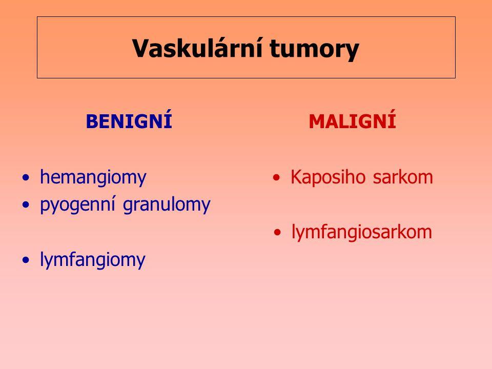 Vaskulární tumory BENIGNÍ hemangiomy pyogenní granulomy lymfangiomy MALIGNÍ Kaposiho sarkom lymfangiosarkom