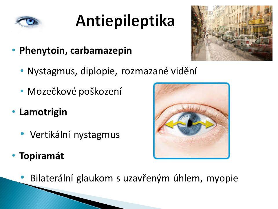 Antiepileptika Phenytoin, carbamazepin Nystagmus, diplopie, rozmazané vidění Mozečkové poškození Lamotrigin Vertikální nystagmus Topiramát Bilaterální glaukom s uzavřeným úhlem, myopie