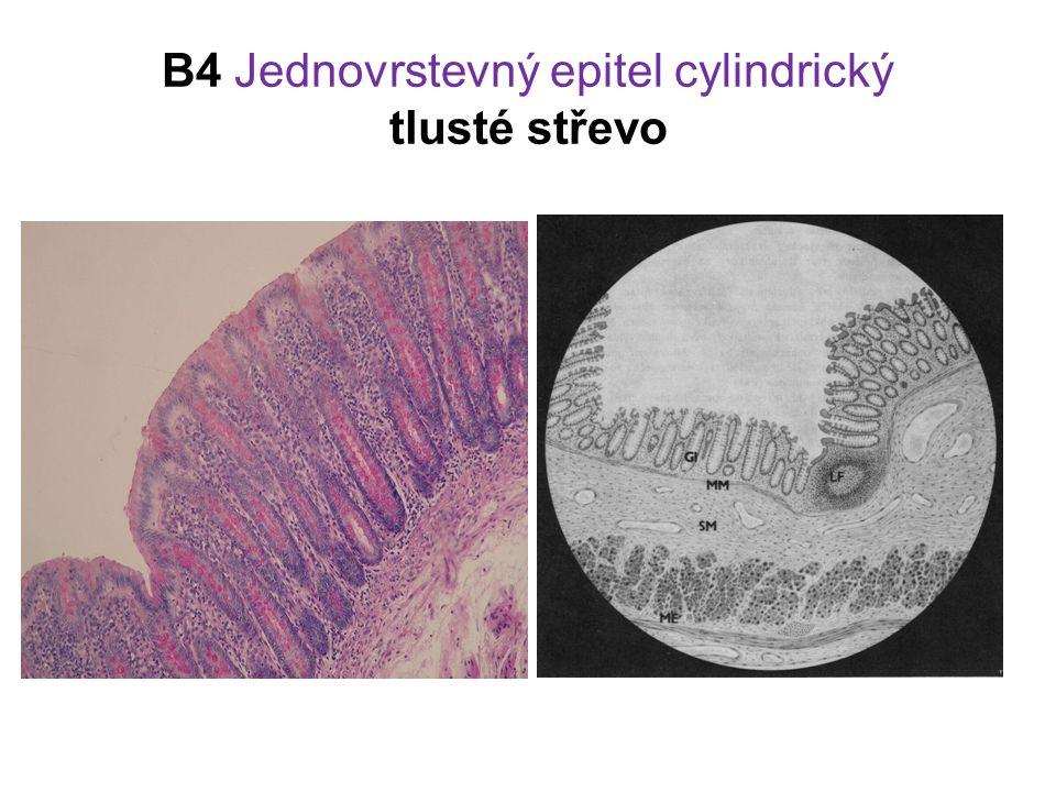 B4 Jednovrstevný epitel cylindrický tlusté střevo
