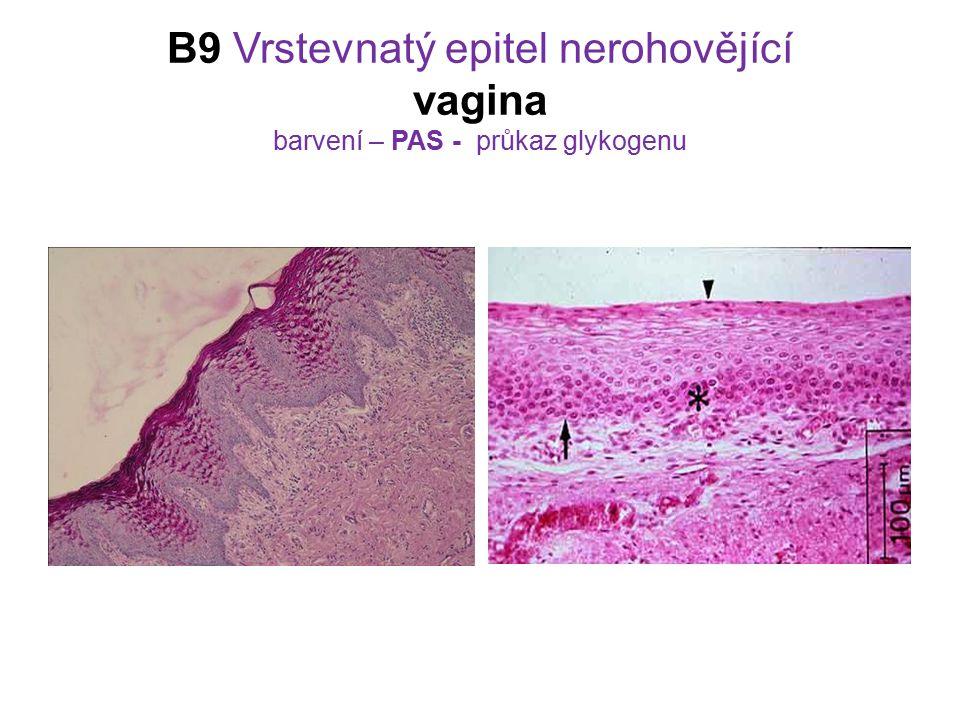 B9 Vrstevnatý epitel nerohovějící vagina barvení – PAS - průkaz glykogenu