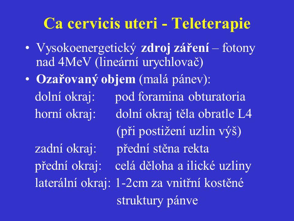 Ca cervicis uteri - Teleterapie Vysokoenergetický zdroj záření – fotony nad 4MeV (lineární urychlovač) Ozařovaný objem (malá pánev): dolní okraj: pod