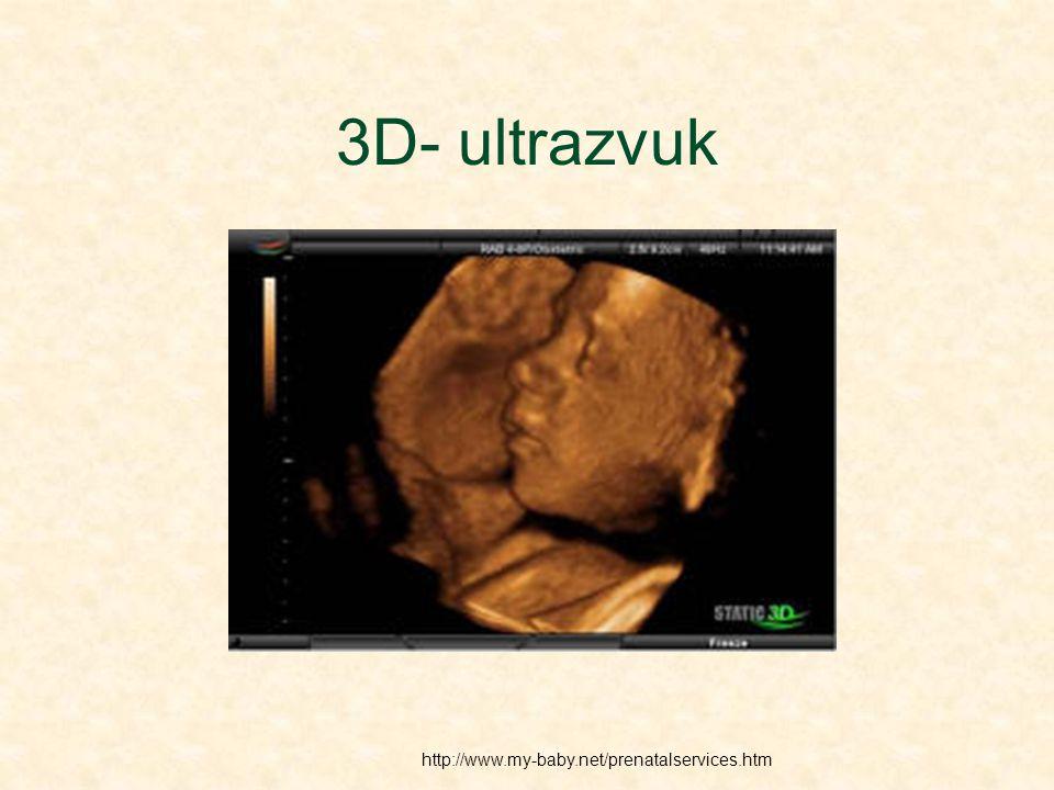 3D- ultrazvuk http://www.my-baby.net/prenatalservices.htm