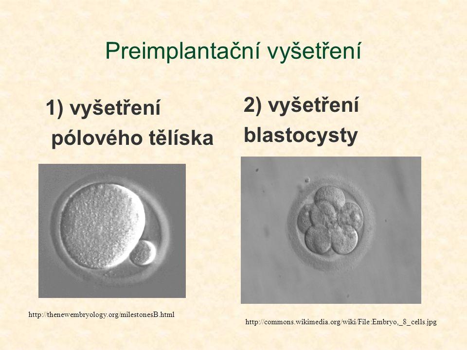 Preimplantační vyšetření 1) vyšetření pólového tělíska 2) vyšetření blastocysty http://thenewembryology.org/milestonesB.html http://commons.wikimedia.