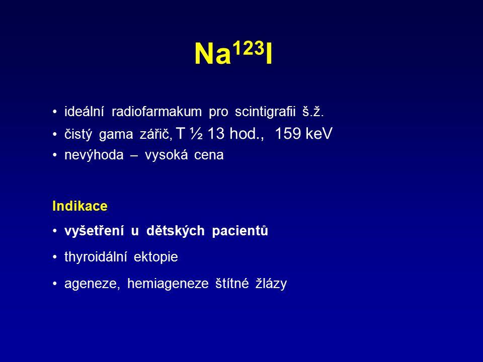 Na 123 I ideální radiofarmakum pro scintigrafii š.ž. čistý gama zářič, T ½ 13 hod., 159 keV nevýhoda – vysoká cena Indikace vyšetření u dětských pacie