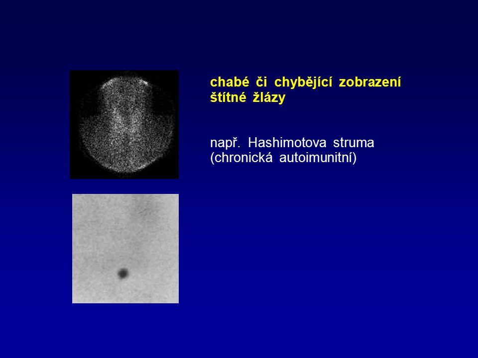 chabé či chybějící zobrazení štítné žlázy např. Hashimotova struma (chronická autoimunitní)