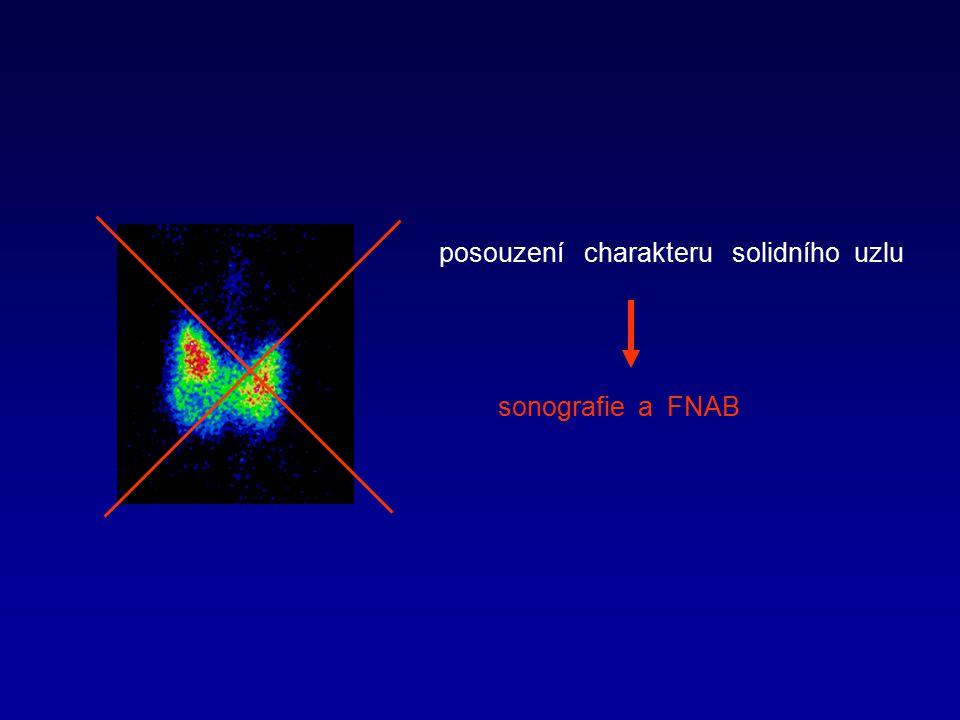 posouzení charakteru solidního uzlu sonografie a FNAB