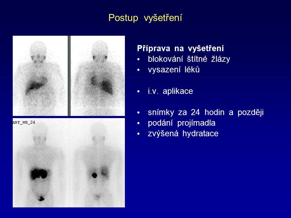 Postup vyšetření Příprava na vyšetření blokování štítné žlázy vysazení léků i.v. aplikace snímky za 24 hodin a později podání projímadla zvýšená hydra