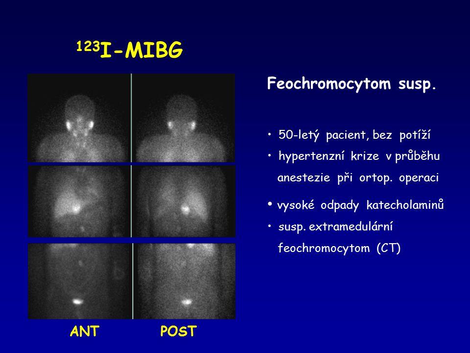 123 I-MIBG Feochromocytom susp. 50-letý pacient, bez potíží hypertenzní krize v průběhu anestezie při ortop. operaci vysoké odpady katecholaminů susp.
