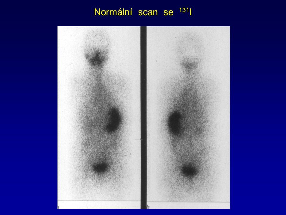 Normální scan se 131 I