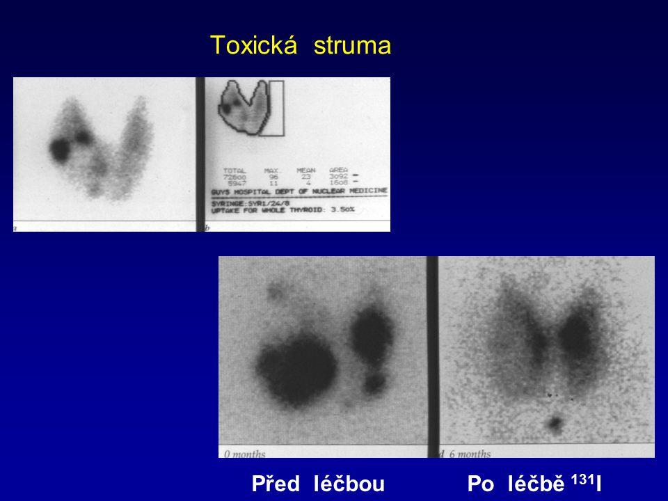 Toxická struma Před léčbouPo léčbě 131 I