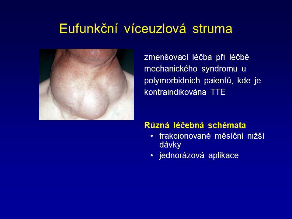 Eufunkční víceuzlová struma zmenšovací léčba při léčbě mechanického syndromu u polymorbidních paientů, kde je kontraindikována TTE Různá léčebná schém
