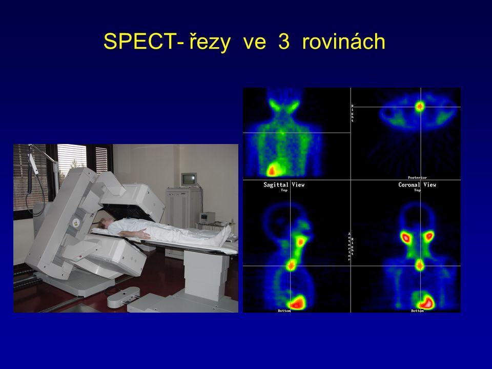 SPECT- řezy ve 3 rovinách