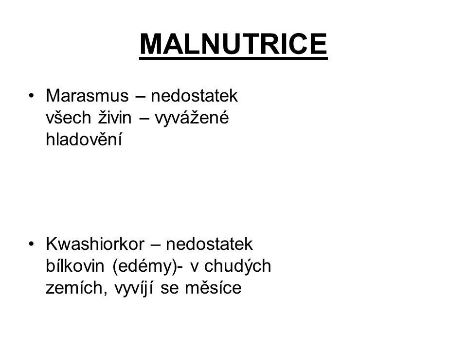 MALNUTRICE Marasmus – nedostatek všech živin – vyvážené hladovění Kwashiorkor – nedostatek bílkovin (edémy)- v chudých zemích, vyvíjí se měsíce