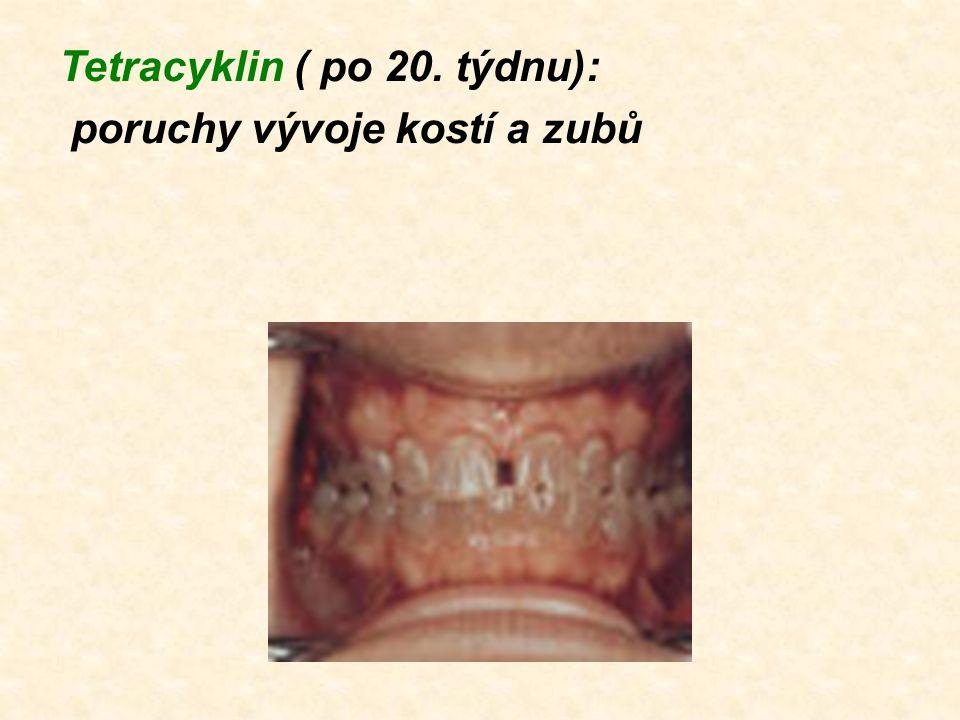 Tetracyklin ( po 20. týdnu): poruchy vývoje kostí a zubů