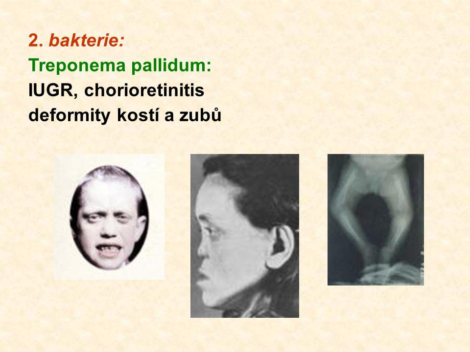 2. bakterie: Treponema pallidum: IUGR, chorioretinitis deformity kostí a zubů