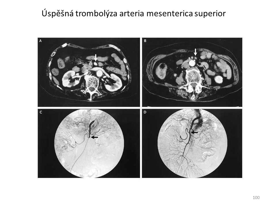 100 Úspěšná trombolýza arteria mesenterica superior