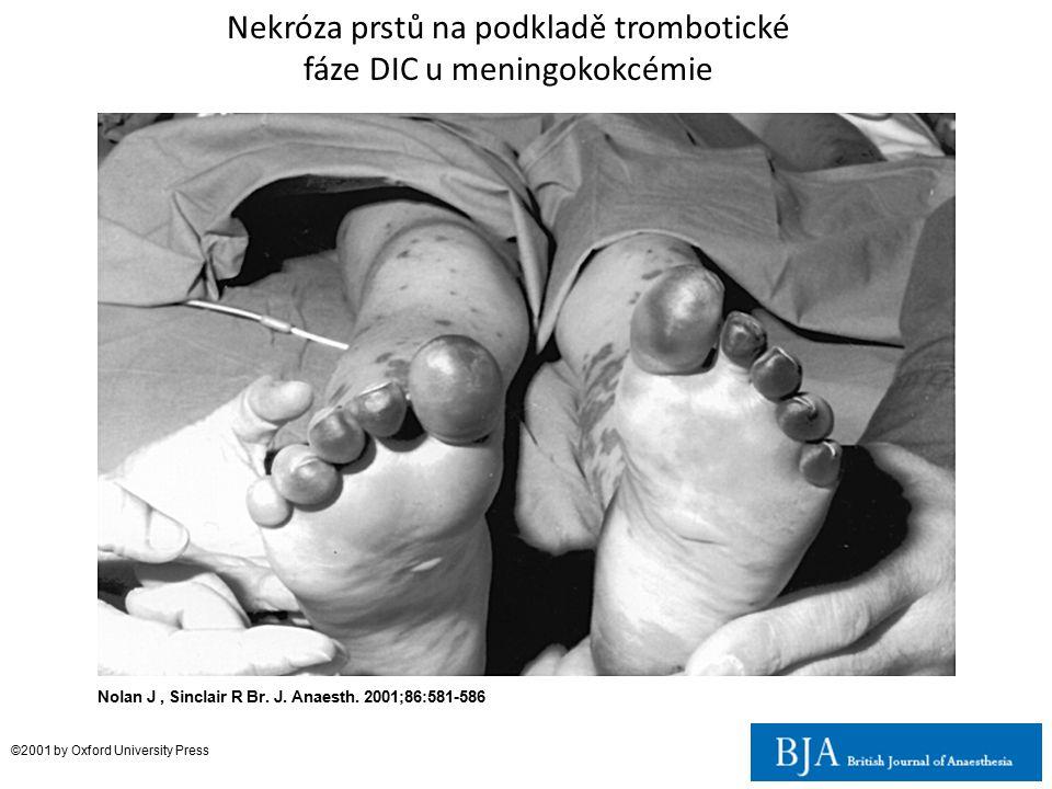Nolan J, Sinclair R Br. J. Anaesth. 2001;86:581-586 ©2001 by Oxford University Press Nekróza prstů na podkladě trombotické fáze DIC u meningokokcémie