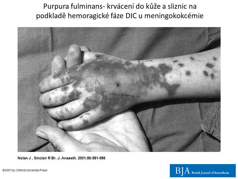 Nolan J, Sinclair R Br. J. Anaesth. 2001;86:581-586 ©2001 by Oxford University Press Purpura fulminans- krvácení do kůže a sliznic na podkladě hemorag