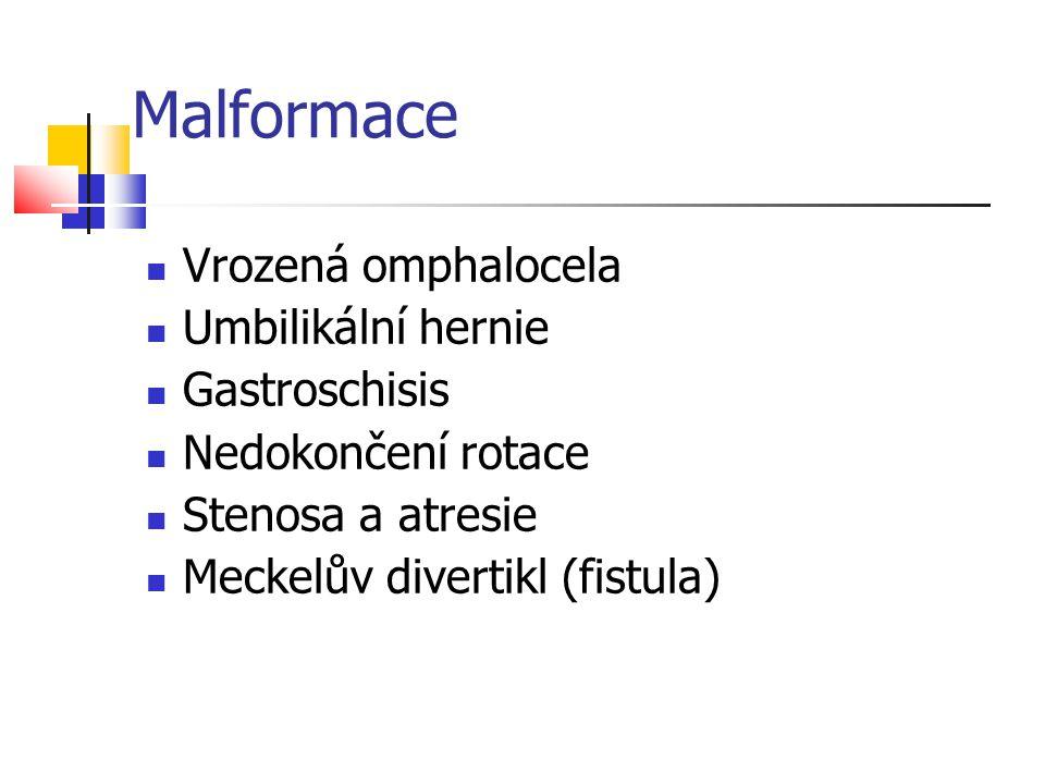 Malformace Vrozená omphalocela Umbilikální hernie Gastroschisis Nedokončení rotace Stenosa a atresie Meckelův divertikl (fistula)