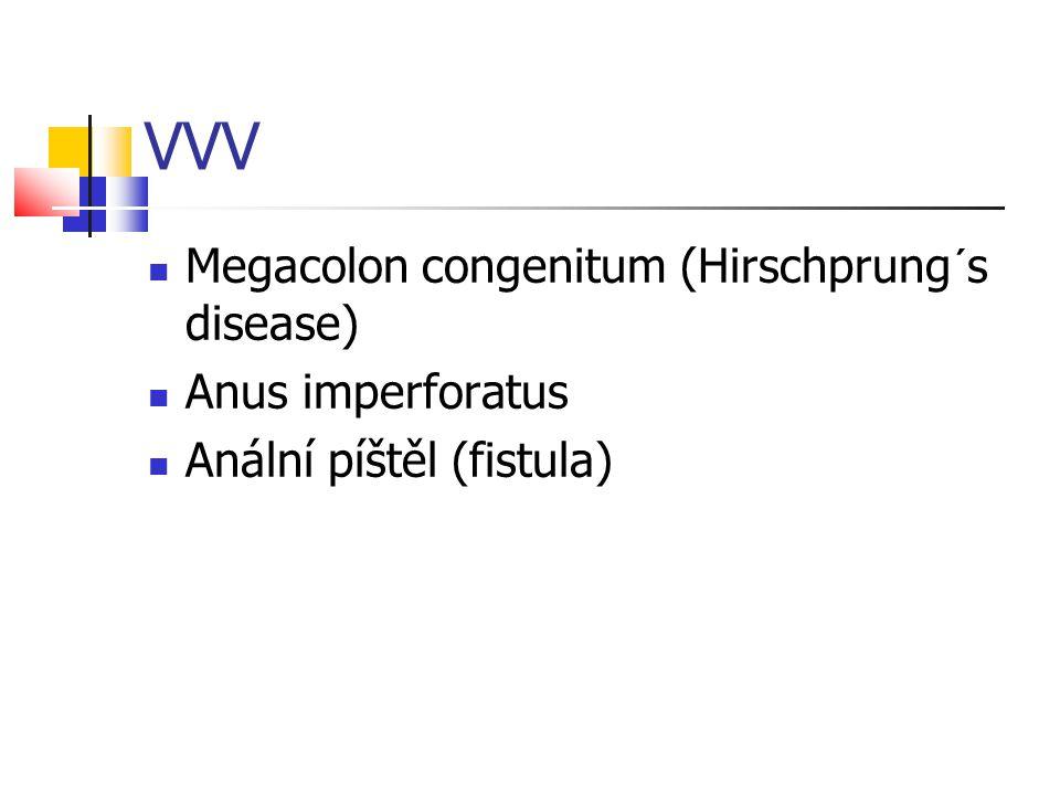 VVV Megacolon congenitum (Hirschprung´s disease) Anus imperforatus Anální píštěl (fistula)