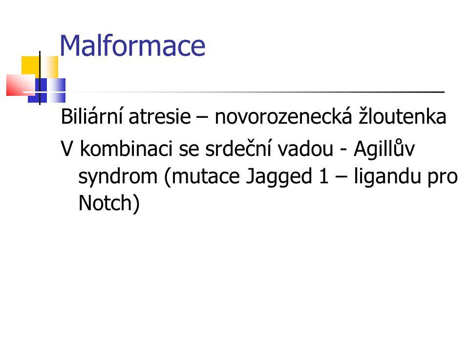 Malformace Biliární atresie – novorozenecká žloutenka V kombinaci se srdeční vadou - Agillův syndrom (mutace Jagged 1 – ligandu pro Notch)