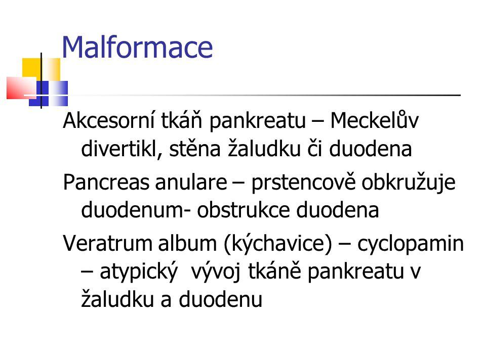 Malformace Akcesorní tkáň pankreatu – Meckelův divertikl, stěna žaludku či duodena Pancreas anulare – prstencově obkružuje duodenum- obstrukce duodena