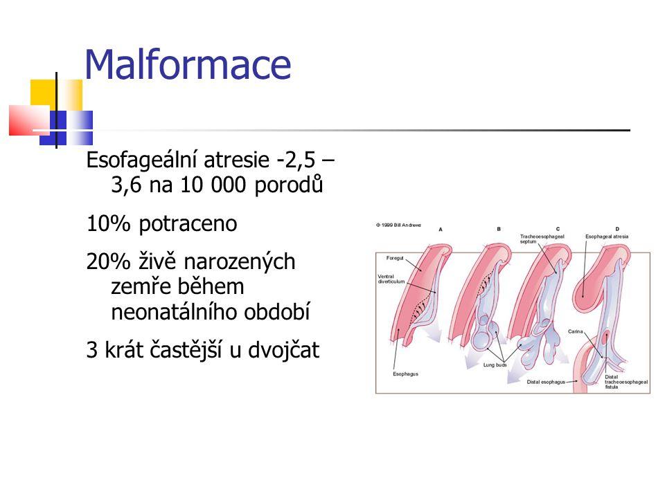 Esofageální atresie -2,5 – 3,6 na 10 000 porodů 10% potraceno 20% živě narozených zemře během neonatálního období 3 krát častější u dvojčat Malformace